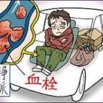 車中泊や椅子に座っての睡眠に注意!エコノミークラス症候群にならない為に行う3つのこと