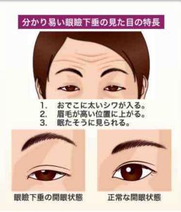 眼瞼下垂の画像