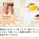 【植物油はどれがいい?】アトピー肌やアレルギーでもマヨネーズ使いたい!新鮮な卵黄とアマニ油やえごま油で作ってみる?