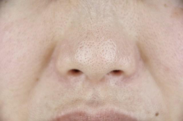 毛穴が広がった鼻